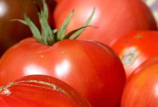 About the NYU Dietetic Internship | NYU